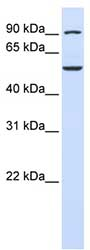 Western blot - WDR34 antibody (ab81030)