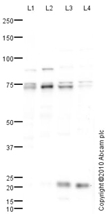 Western blot - LIMK1 antibody (ab81046)