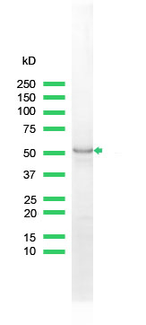 Western blot - Cytokeratin 7 antibody (ab81074)