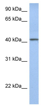 Western blot - YIPF1 antibody (ab81079)