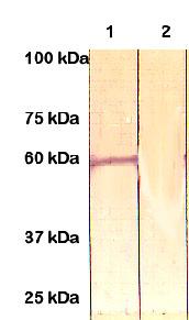 Western blot - ER81 antibody (ab81086)