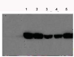 Western blot - Fumarylacetoacetate hydrolase antibody (ab81087)