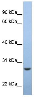 Western blot - C15orf24 antibody (ab81132)
