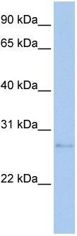 Western blot - MDM1 antibody (ab81133)