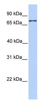 Western blot - Colec12 antibody (ab81136)