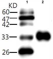 Western blot - Hepatitis A H2K20 antibody [1] (ab81140)