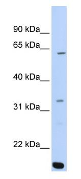 Western blot - ARID5A antibody (ab81149)