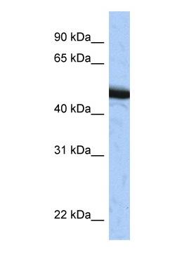Western blot - SPOP antibody (ab81163)