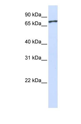 Western blot - Unc5a antibody (ab81165)