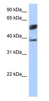 Western blot - SPOPL antibody (ab81167)