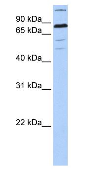 Western blot - ZNF700 antibody (ab81168)