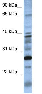Western blot - DOLPP1 antibody (ab81172)