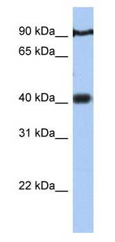 Western blot - PTOV1 antibody (ab81173)