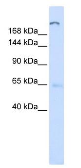 Western blot - ATP10D antibody (ab81174)