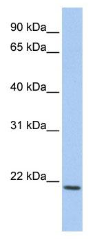 Western blot - IL22 antibody (ab81175)