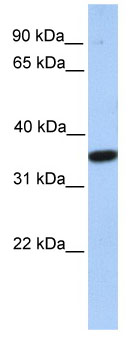 Western blot - MOGT1 antibody (ab81177)