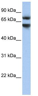 Western blot - JPH3 antibody (ab81178)