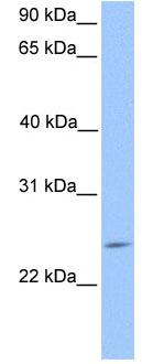 Western blot - Securin 2 antibody (ab81181)