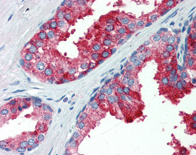 Immunohistochemistry (Formalin/PFA-fixed paraffin-embedded sections) - Anti-YAP1 antibody (ab81183)