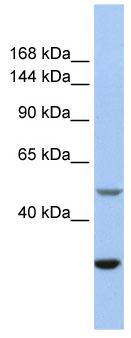 Western blot - ZZZ3 antibody (ab81185)