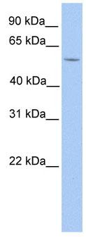 Western blot - LIMD1 antibody (ab81186)