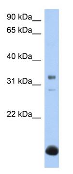 Western blot - B3GALT6 antibody (ab81210)