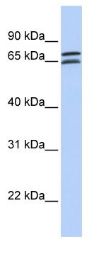 Western blot - DCP1B antibody (ab81211)