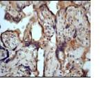 Immunohistochemistry (Formalin/PFA-fixed paraffin-embedded sections) - PKC mu (phospho S916) antibody [EP1494Y] (ab81218)