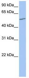 Western blot - UGT2A3 antibody (ab81231)