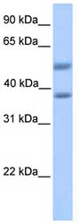 Western blot - ST6GALNAC2 antibody (ab81235)