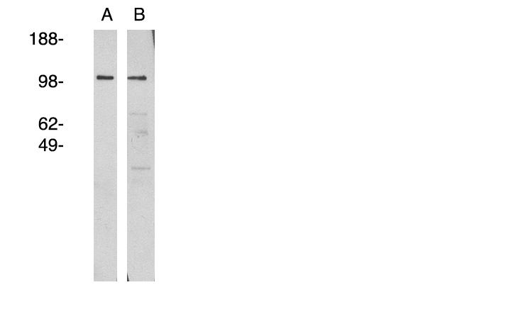Western blot - NSMAF antibody (ab81260)