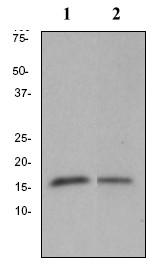 Western blot - CDKN2A/p16INK4a  antibody [EP4353Y] (ab81278)