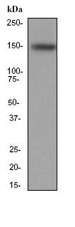 Western blot - Integrin alpha 4 antibody [EPR1355Y] (ab81280)