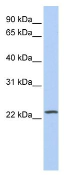Western blot - PIP5KL1 antibody (ab81304)