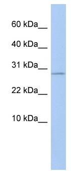 Western blot - ANKRD7 antibody (ab81309)