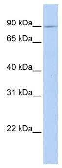 Western blot - XYLT2 antibody (ab81311)