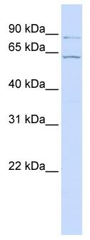 Western blot - ARL6IP2 antibody (ab81314)