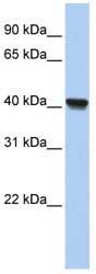 Western blot - RLBP1L1  antibody (ab81315)