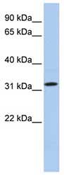 Western blot - C15ORF26 antibody (ab81316)