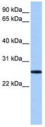 Western blot - FBXO36 antibody (ab81317)