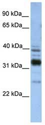 Western blot - TXNDC13 antibody (ab81323)