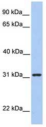 Western blot - SRPR beta antibody (ab81324)