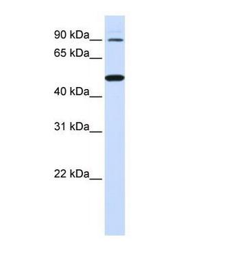Western blot - RHBDF1 antibody (ab81342)
