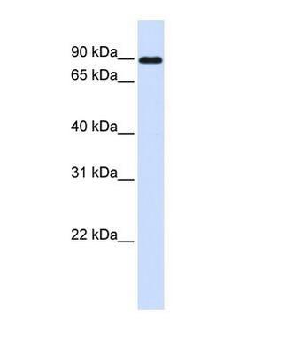 Western blot - EY Cadherin antibody (ab81343)