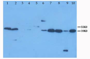Western blot - XAF1 antibody (ab81353)