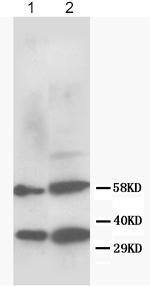 Western blot - Rad51 antibody (ab81386)