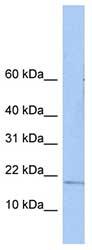 Western blot - ZNHIT3 antibody (ab81417)