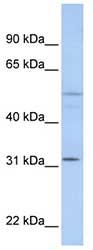 Western blot - ZFYVE19 antibody (ab81418)