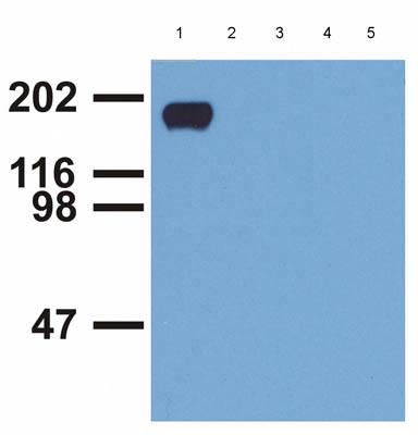 Western blot - EGFR (phospho Y992) antibody [EM-12] (ab81440)