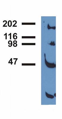 Immunoprecipitation - EGFR (phospho Y992) antibody [EM-12] (ab81440)